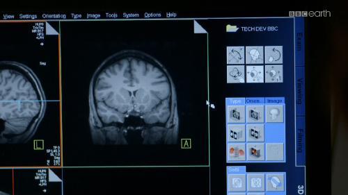 Какого пола твой мозг? / Is Your Brain Male Or Female? (2014) 1080i HDTV